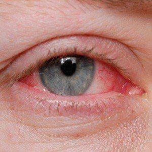 Can I give my dog pink eye?