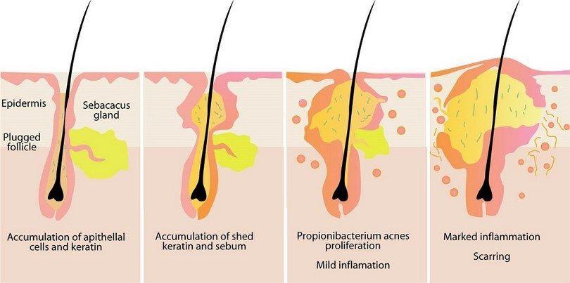 Pimples infogrpahic