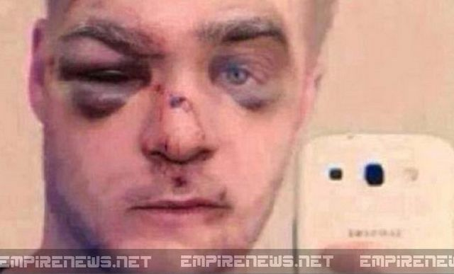 Look what happened to the man who beat his dog. What's your opinion?